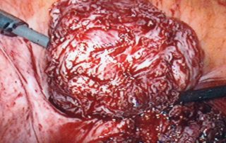 Same Fibroid Removed By Laparoscopic Myomectomy